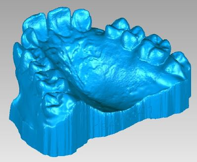 3D-printed-dental