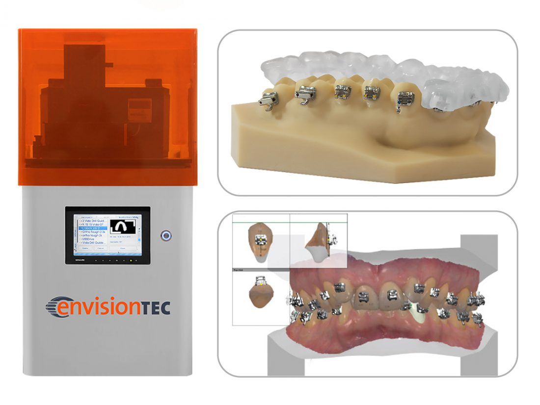 IDS-2017-EnvisionTEC-Vida-E-IDB-with-3Shape-Ortho-Analyzer
