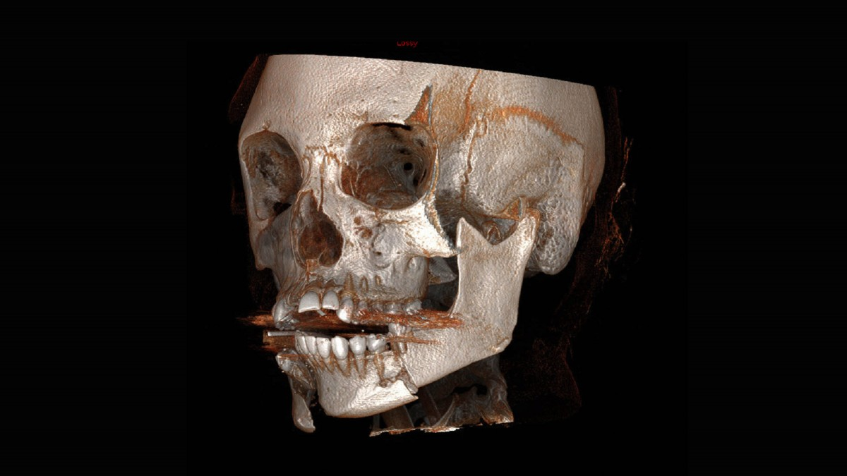 Jaw-FRACTURE-1