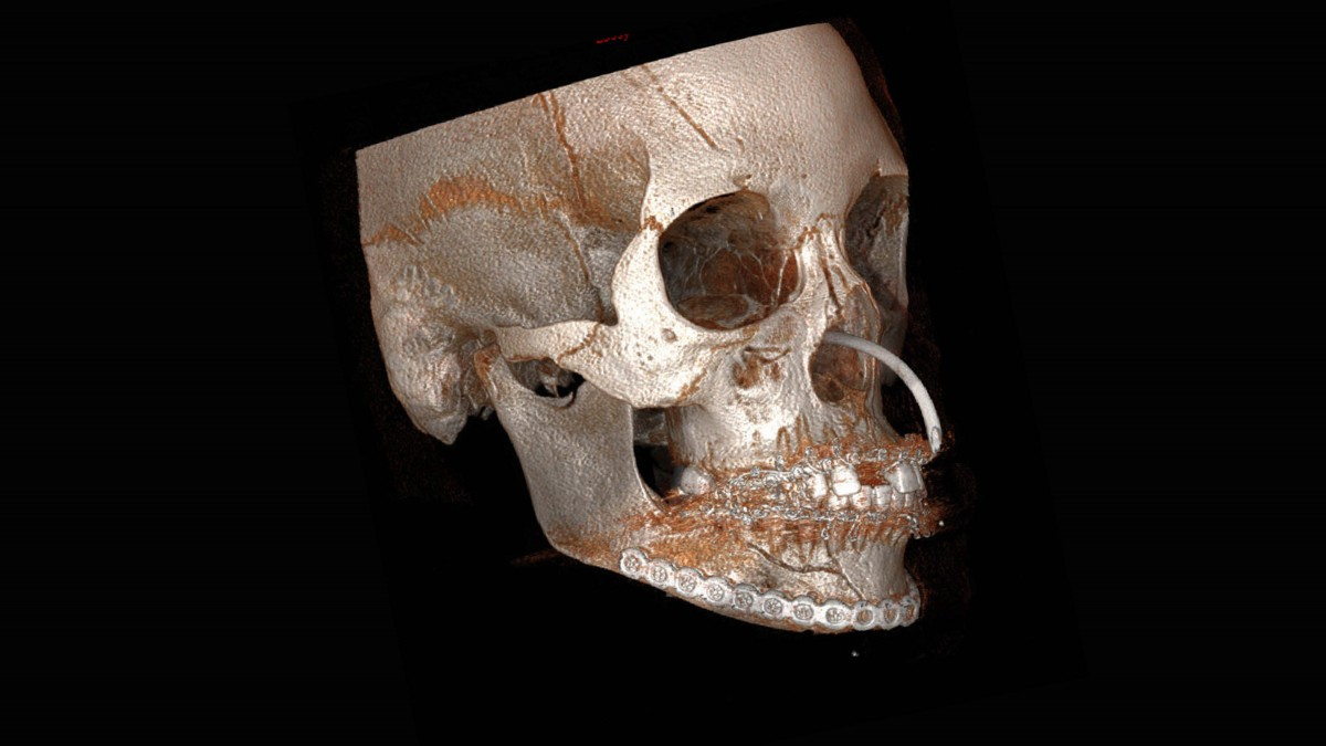Jaw-FRACTURE-4
