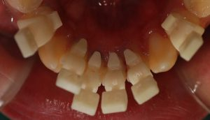 lingual-brackets-on-teeth-300x172